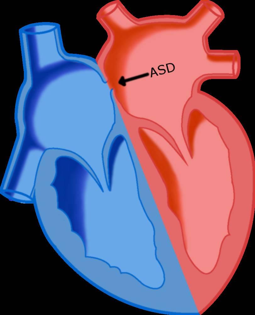 بیماری مادرزادی ASD
