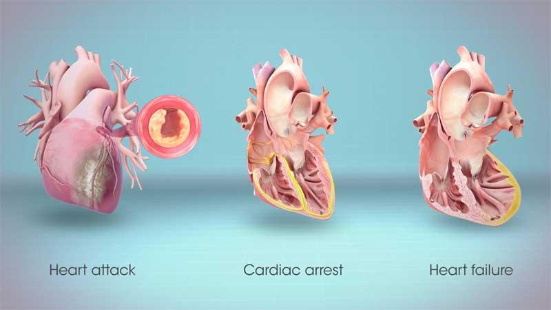 تفاوت ایست قلبی و سکته قلبی