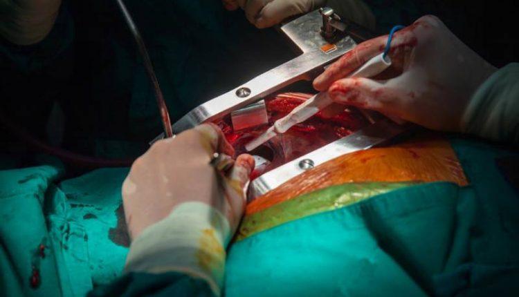 جراحی بای پس قلب