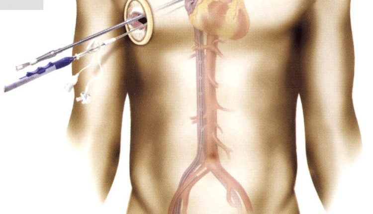 جراحی کم تهاجمی دریچه قلب