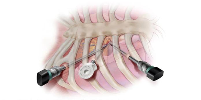 جراحی کم تهاجمی قلب