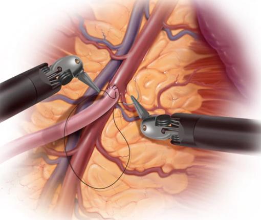 جراحی بسته بای پس قلب