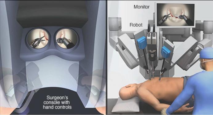 جراحی به کمک ربات