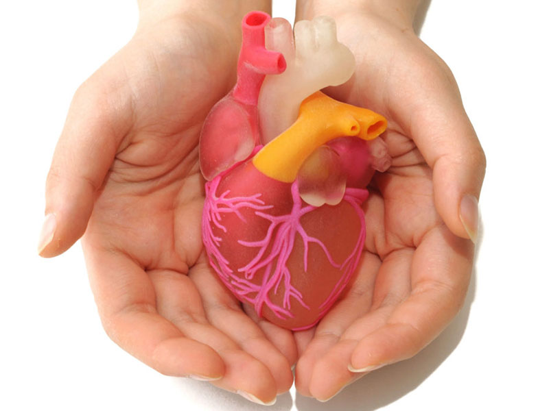 تعویض دریچه قلب